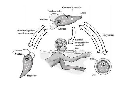 Микроб, питающийся мозгом – не, фантастика, а ужасающая реальность 02